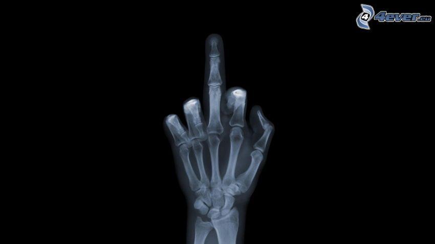 Geste, Röntgen, Hand