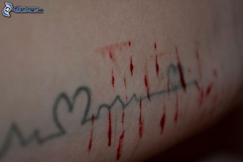Verletzungen, Hand, Herzen