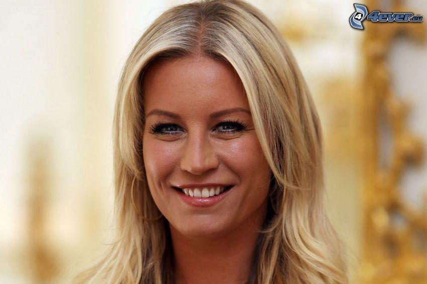 Denise van Outen, Lächeln