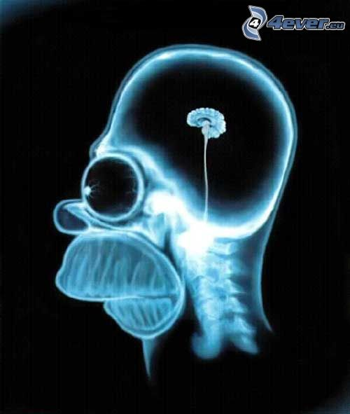Homer Simpson, Gehirn, Röntgen