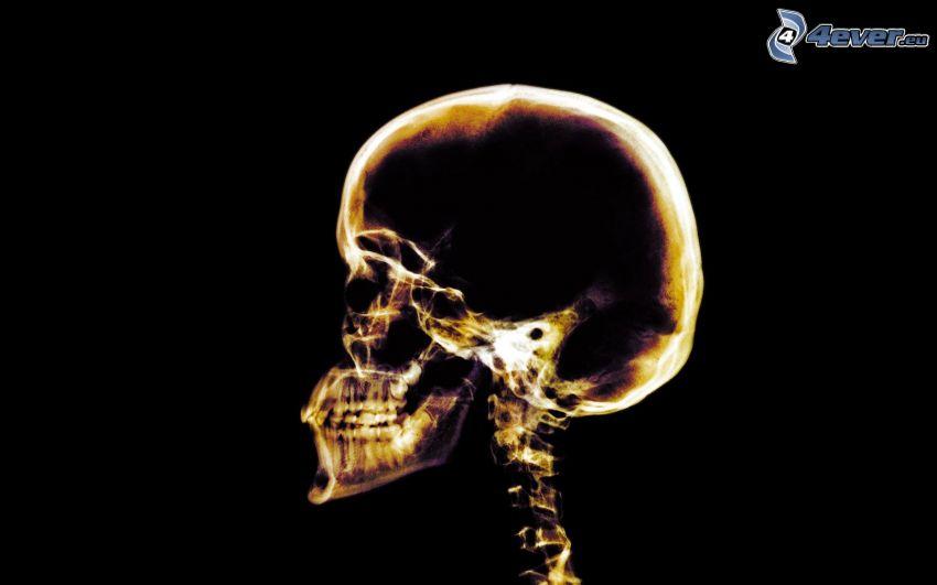 dödskalle, skelett