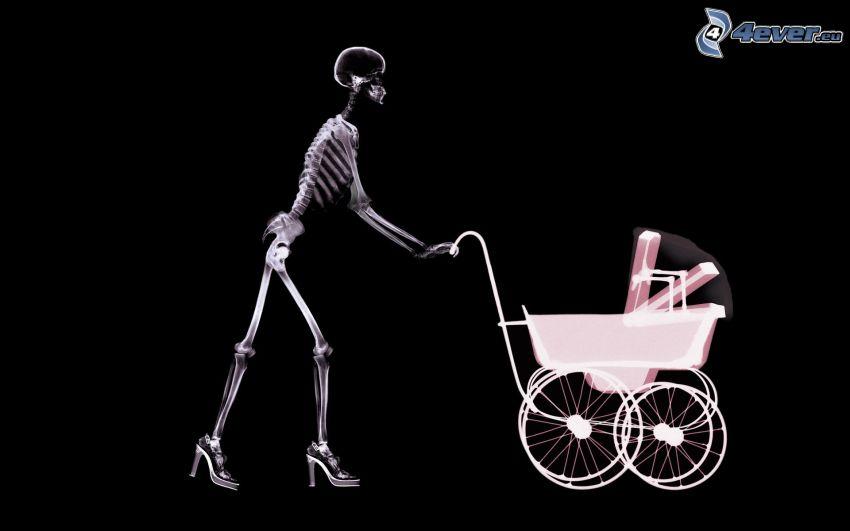 esqueleto, coche de niño