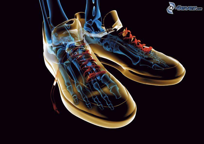Rayos X, zapatos deportivos, huesos