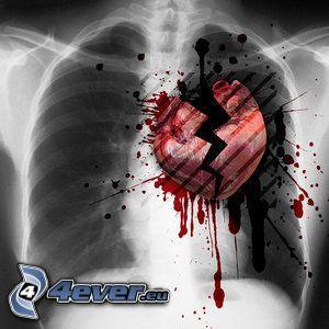 corazón roto, Rayos X, pecho, costillas, sangre