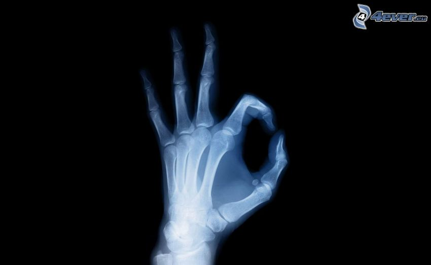 mano, huesos, Rayos X