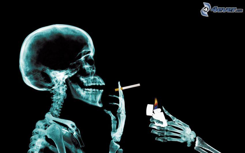 crâne, squelette, cigarette, fumerie