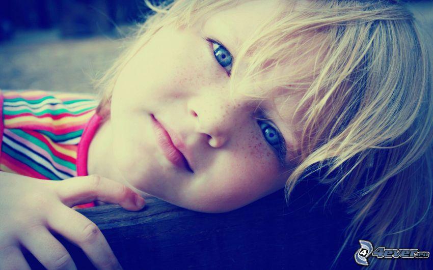 bambino lentigginoso
