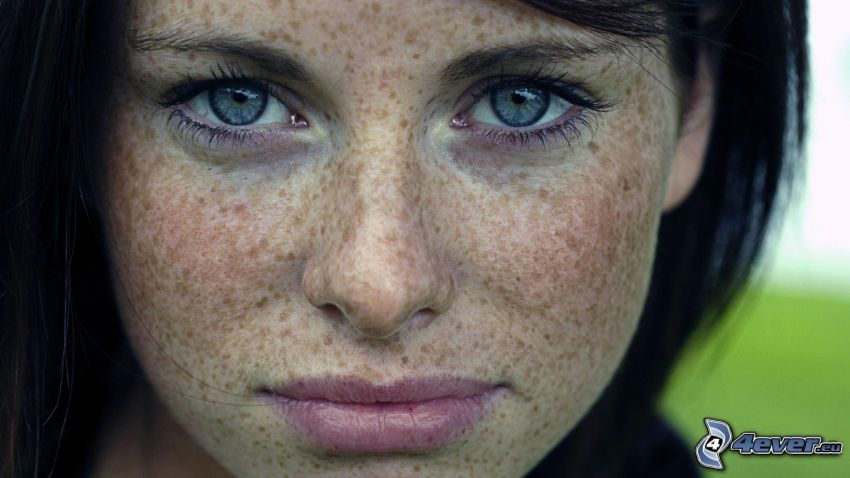 freckled girl